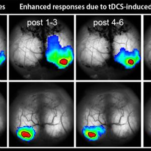 Calcium waves in the brain alleviate depressive behavior in mice